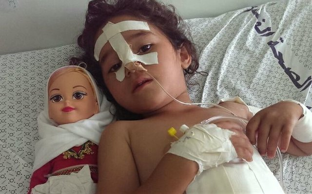Shaymaa_al-Masri_five_years_old_at_a-Shifaa_Hospital_Gaza.jpg.jpe