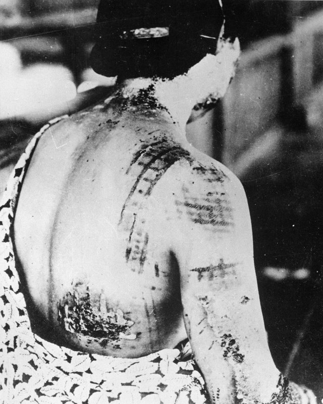 The_patient's_skin_is_burned_in_a_pattern_corresponding_to_the_dark_portions_of_a_kimono_-_NARA_-_519686.jpg.jpe